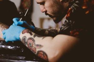 rimozione-tatuaggi